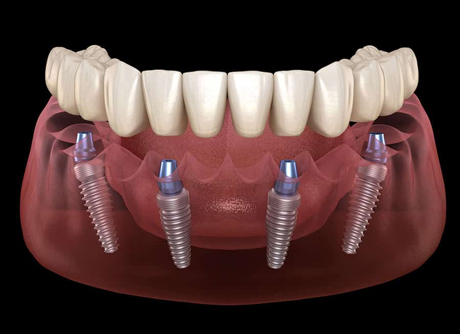 dental implants reviews in Chicago
